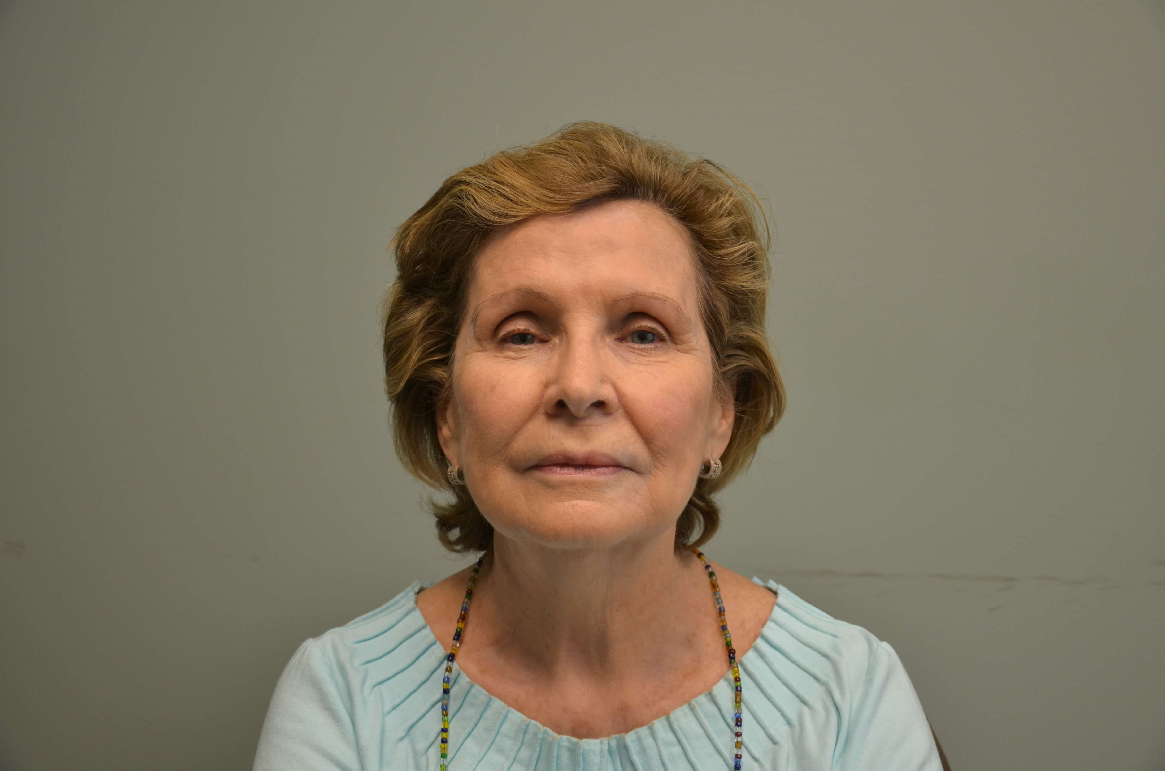 79 yo WF Completes Neck Lift Before