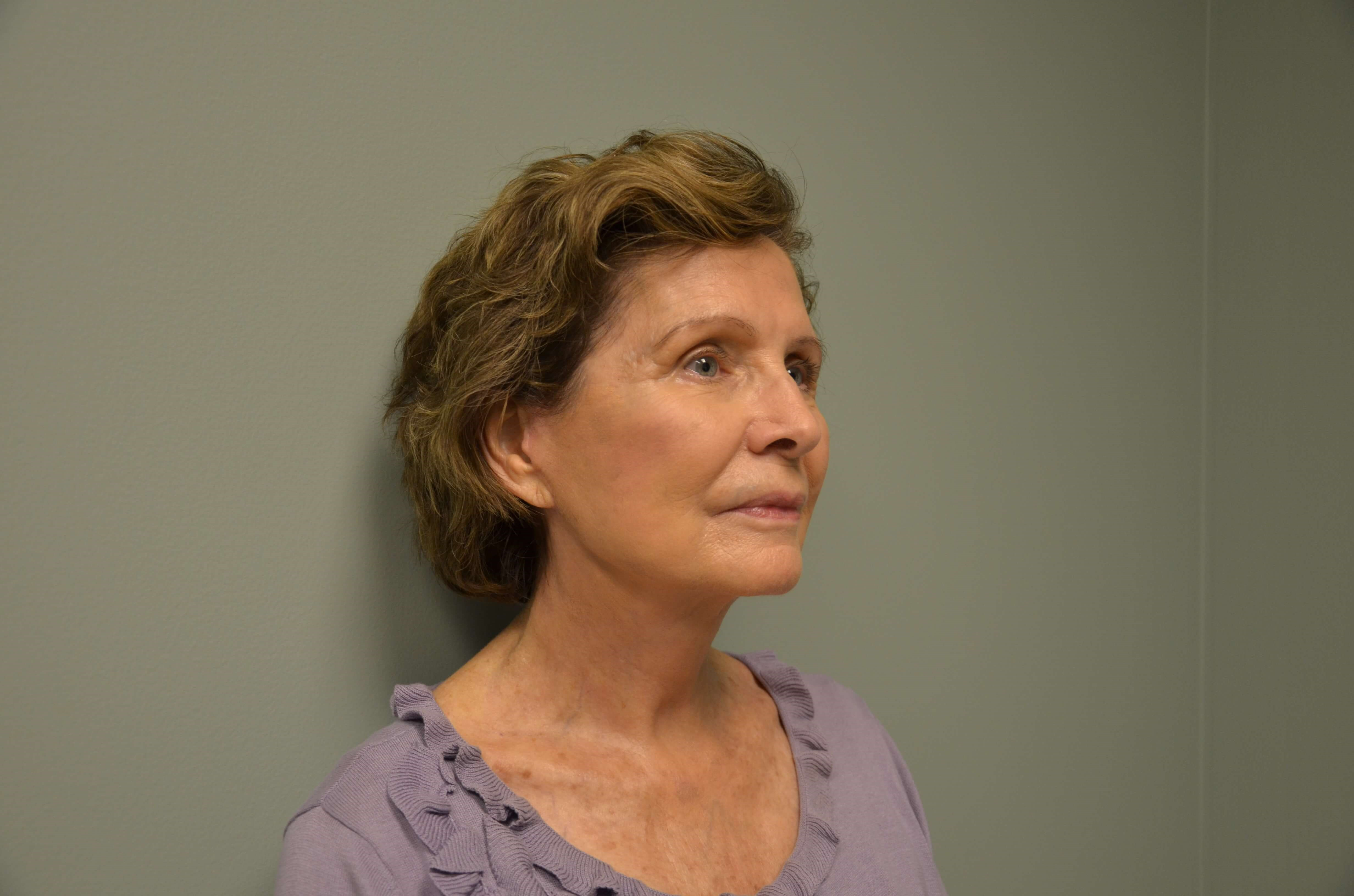 79 yo WF Completes Neck Lift After
