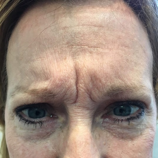 62yo female First Botox Before
