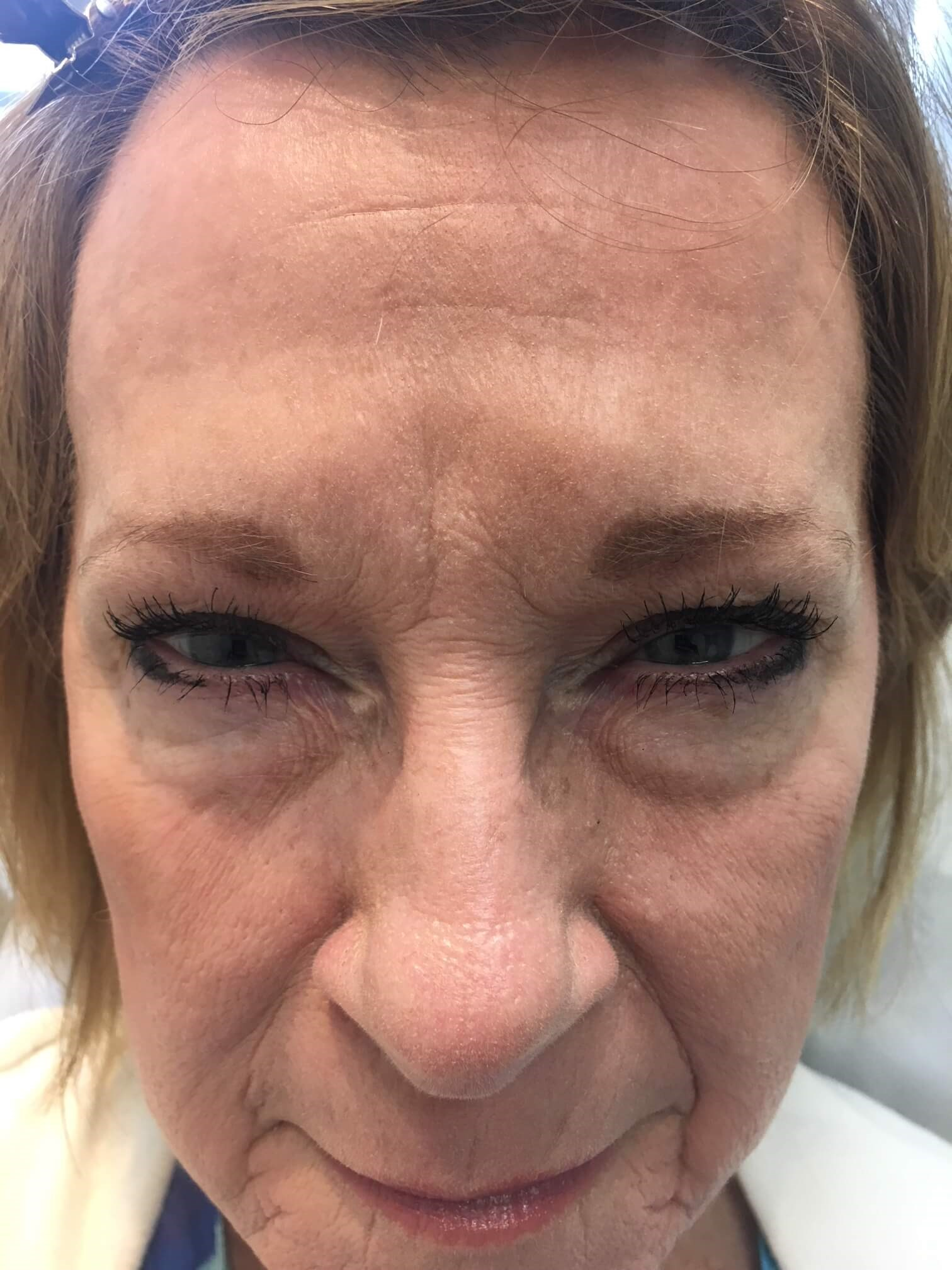 62yo female First Botox After