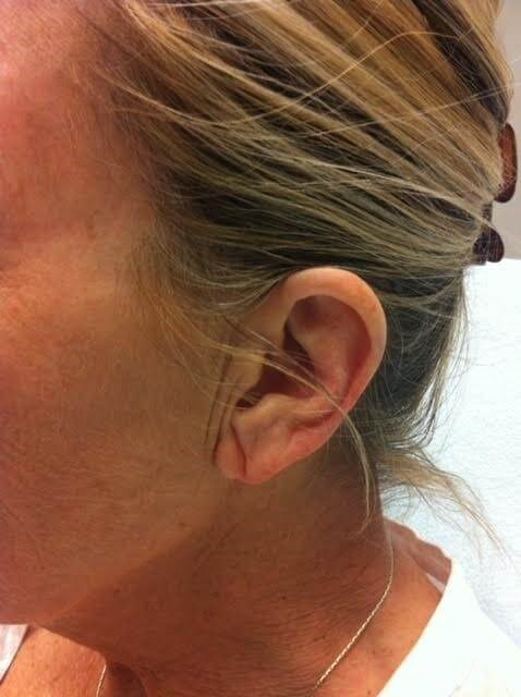 Earlobe Rejuvenation Before