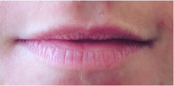Give Your Lips a 'Fuller' Look Before